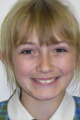 Orthodontist in Coventry | Orthodontist in Redditch