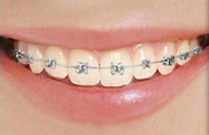 Self Lingual Braces